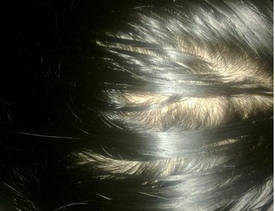 脱发的症状