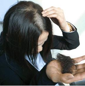 女性脂溢性脱发的症状